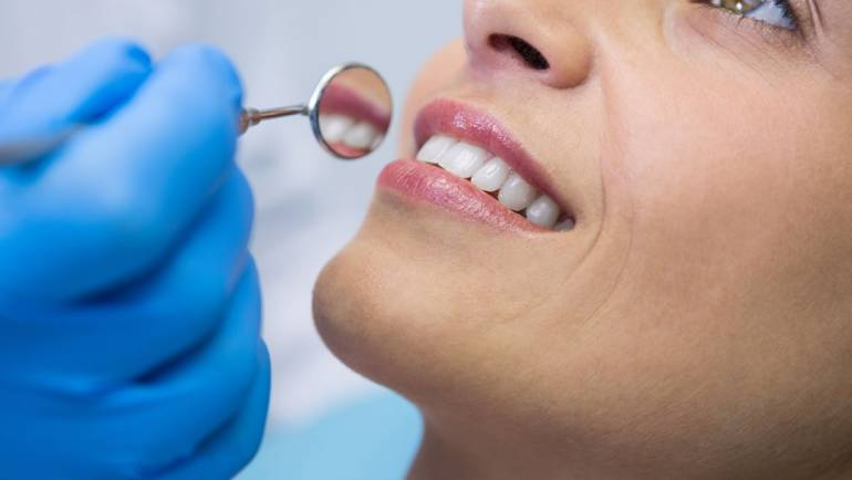 The Important Benefits of Dental Cleanings