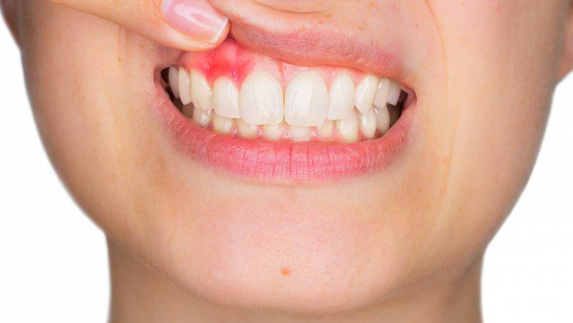 Causes and Signs of Gum Disease