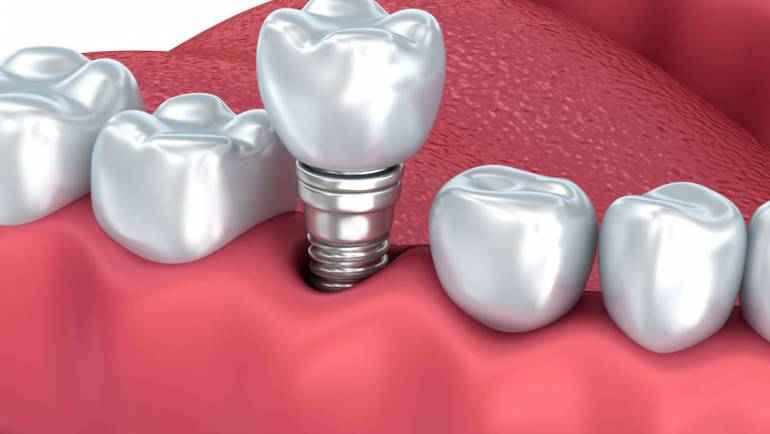 Bridges vs. Implants in Pensacola, Florida