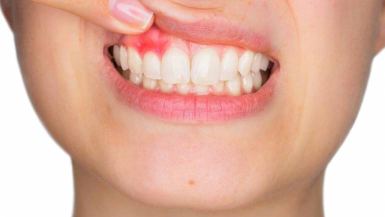 5 Symptoms of Gum Disease