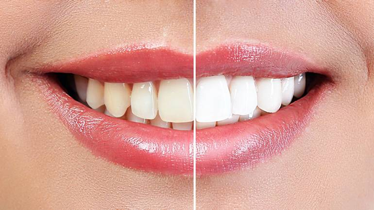 Teeth Whitening for a More Confident Smile