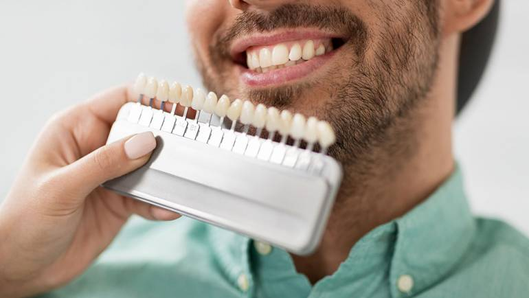 What are Veneers and How Do They Work?