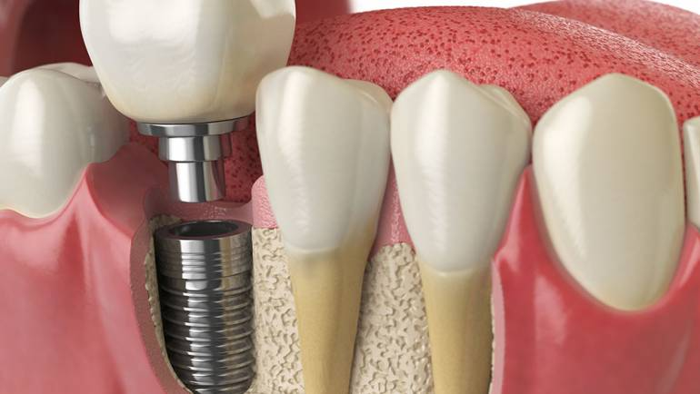 The Benefits of Dental Implants over Dentures